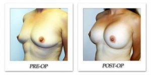 phoca_thumb_l_hodnett-breast-augmentation-012
