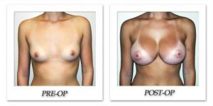 phoca_thumb_l_hodnett-breast-augmentation-013