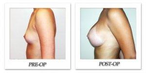 phoca_thumb_l_hodnett-breast-augmentation-014