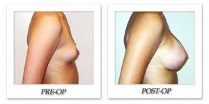 phoca_thumb_l_hodnett-breast-augmentation-015