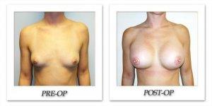 phoca_thumb_l_hodnett-breast-augmentation-016