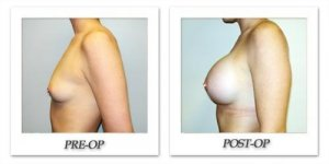 phoca_thumb_l_hodnett-breast-augmentation-017