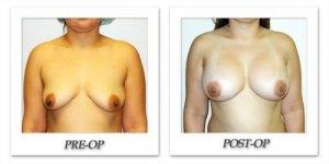 phoca_thumb_l_hodnett-breast-augmentation-018