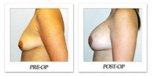 phoca_thumb_l_hodnett-breast-augmentation-019