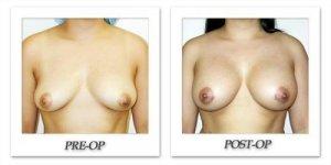 phoca_thumb_l_hodnett-breast-augmentation-020
