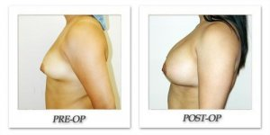 phoca_thumb_l_hodnett-breast-augmentation-021