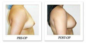 phoca_thumb_l_hodnett-breast-augmentation-022