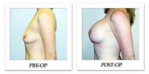 phoca_thumb_l_hodnett-breast-augmentation-023