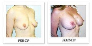 phoca_thumb_l_hodnett-breast-augmentation-024