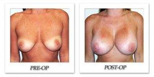 phoca_thumb_l_hodnett-breast-augmentation-025