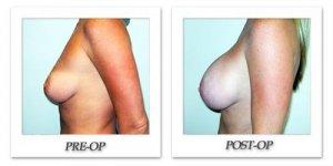 phoca_thumb_l_hodnett-breast-augmentation-026