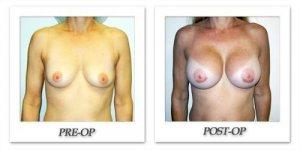 phoca_thumb_l_hodnett-breast-augmentation-027