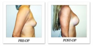 phoca_thumb_l_hodnett-breast-augmentation-029
