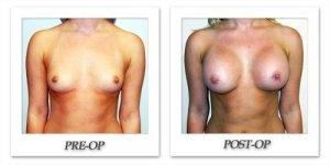 phoca_thumb_l_hodnett-breast-augmentation-030