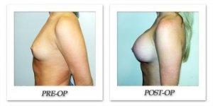 phoca_thumb_l_hodnett-breast-augmentation-031