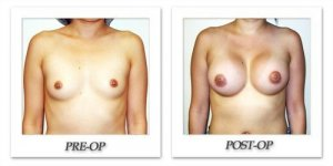 phoca_thumb_l_hodnett-breast-augmentation-032