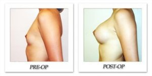 phoca_thumb_l_hodnett-breast-augmentation-033