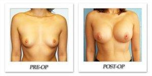 phoca_thumb_l_hodnett-breast-augmentation-034