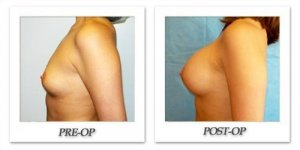 phoca_thumb_l_hodnett-breast-augmentation-035