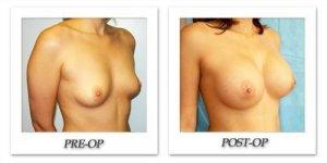 phoca_thumb_l_hodnett-breast-augmentation-036