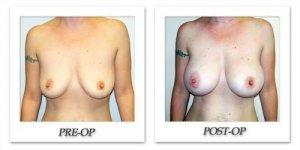 phoca_thumb_l_hodnett-breast-augmentation-037