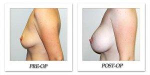 phoca_thumb_l_hodnett-breast-augmentation-038