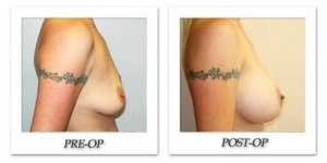 phoca_thumb_l_hodnett-breast-augmentation-039