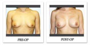 phoca_thumb_l_hodnett-breast-augmentation-040