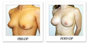 phoca_thumb_l_hodnett-breast-augmentation-041
