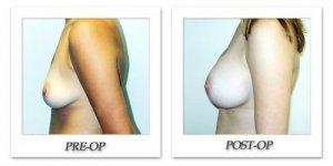 phoca_thumb_l_hodnett-breast-augmentation-043