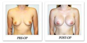 phoca_thumb_l_hodnett-breast-augmentation-044