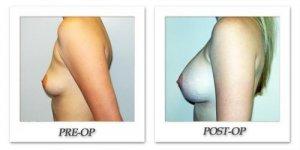 phoca_thumb_l_hodnett-breast-augmentation-045