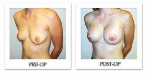 phoca_thumb_l_hodnett-breast-augmentation-046
