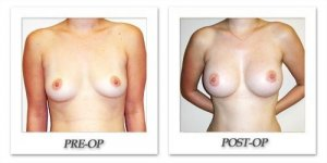 phoca_thumb_l_hodnett-breast-augmentation-047