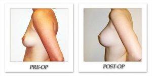 phoca_thumb_l_hodnett-breast-augmentation-048