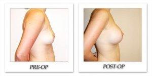 phoca_thumb_l_hodnett-breast-augmentation-049