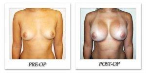 phoca_thumb_l_hodnett-breast-augmentation-050