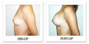 phoca_thumb_l_hodnett-breast-augmentation-051