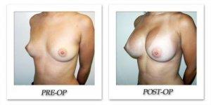phoca_thumb_l_hodnett-breast-augmentation-052