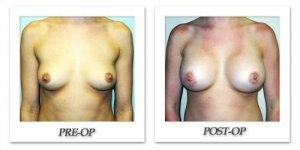 phoca_thumb_l_hodnett-breast-augmentation-053
