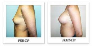 phoca_thumb_l_hodnett-breast-augmentation-054