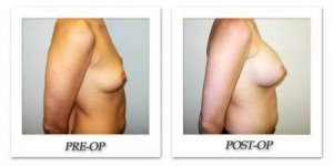 phoca_thumb_l_hodnett-breast-augmentation-055