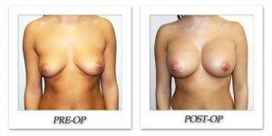 phoca_thumb_l_hodnett-breast-augmentation-056
