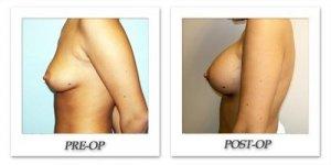 phoca_thumb_l_hodnett-breast-augmentation-057