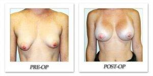 phoca_thumb_l_hodnett-breast-augmentation-058