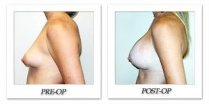 phoca_thumb_l_hodnett-breast-augmentation-059