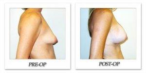 phoca_thumb_l_hodnett-breast-augmentation-060