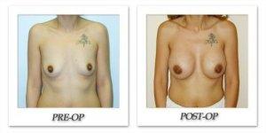 phoca_thumb_l_hodnett-breast-augmentation-patient1-front
