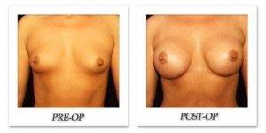 phoca_thumb_l_hodnett-breast-augmentation-patient10-front