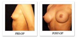 phoca_thumb_l_hodnett-breast-augmentation-patient10-oblique